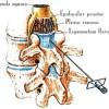 image-epidural